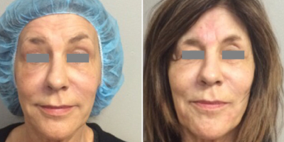 Bellafill and 3 Point PDO Facelift for volume loss and to lift