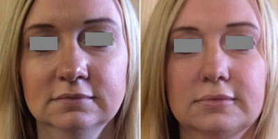 Hyaluronic Facial Filler for Jaw Definition
