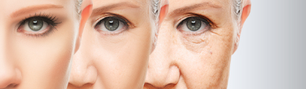 PRP And Plasma Gel Stem Cell Activating Facelift