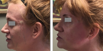 DO Facelift and Bellafill for lift and volume loss
