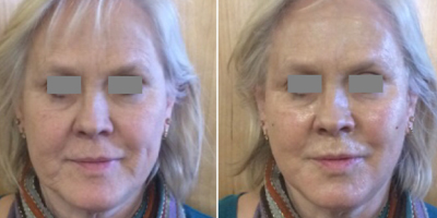 Stem Cell Activating Facelift